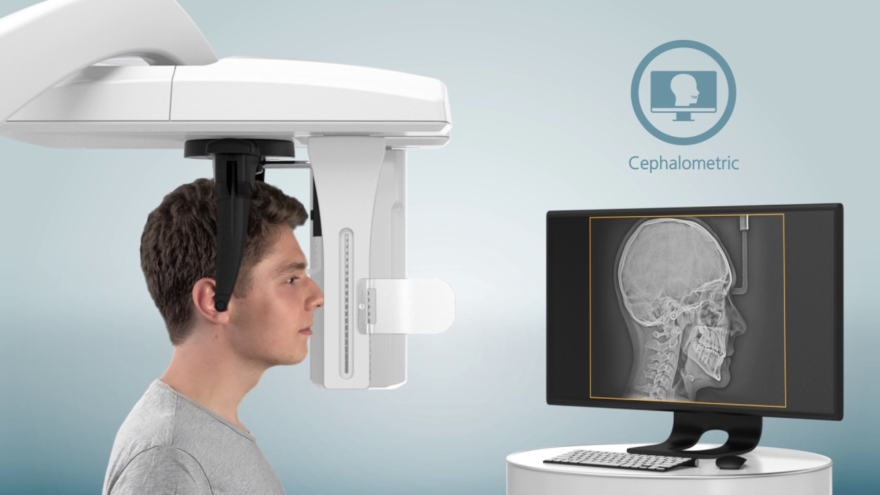Introducing the CS 8100 3D Family With Cephalometric Imaging Option